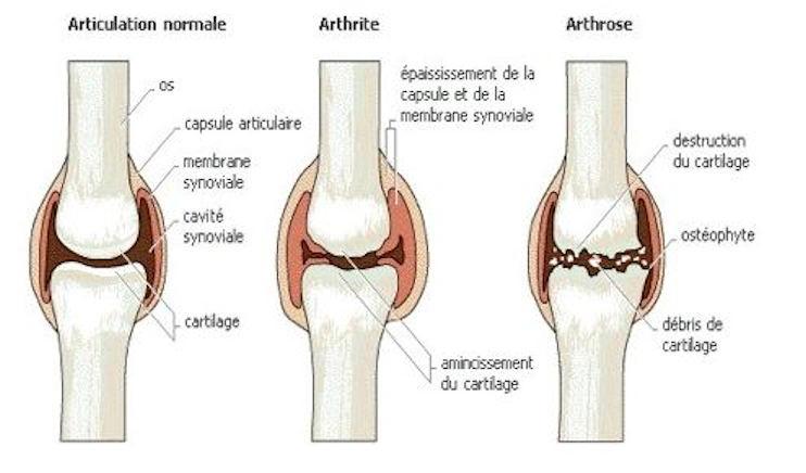 arthrose avant après