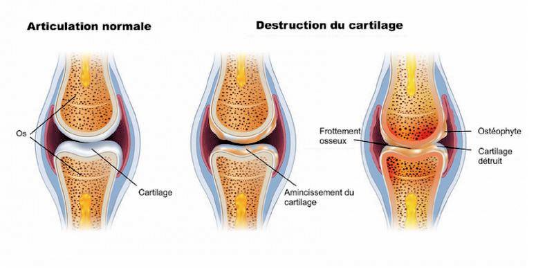cartilage arthrose